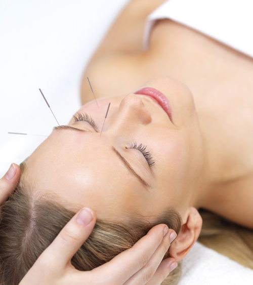 Is It Time to Consider Acupuncture healthy options philippines